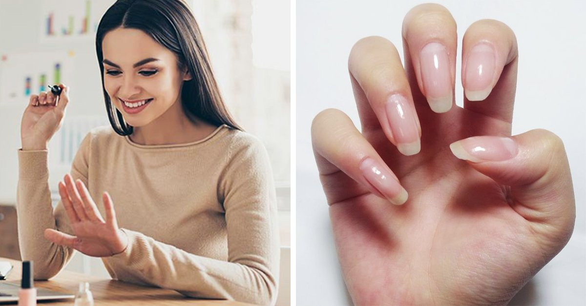 Cambio de textura y color de las uñas puede ser reflejo de una enfermedad
