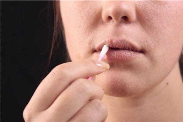 El herpes labial puede quitarle la vida a un bebé