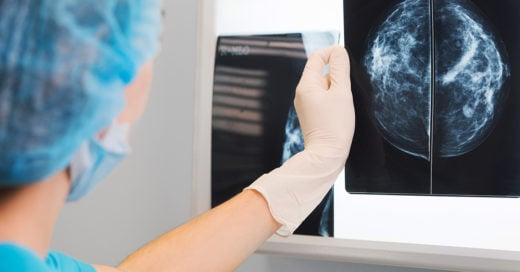 -Inteligencia artificial ayudaría a detectar cáncer de mama