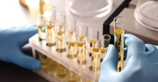 Podrían detectar cáncer de próstata con prueba de orina