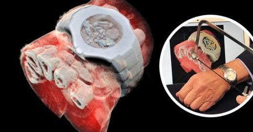 Radiografías a color y 3D el nuevo avance tecnológico para la medicina