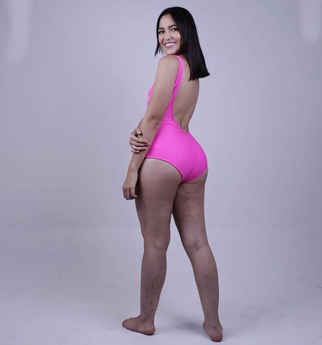 Paula, influencer colombiana, recibió amenazas por mostrar su enfermedad en la piel