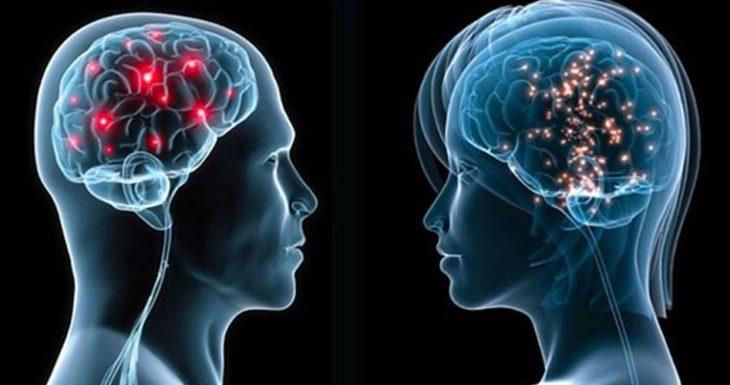 radiografía de dos cerebros, uno de una mujer y uno de un hombre