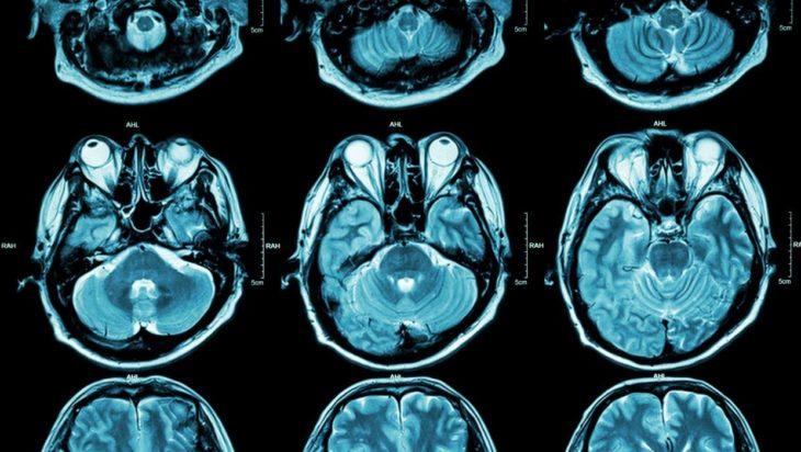 foto de una placa con cortes cerebrales