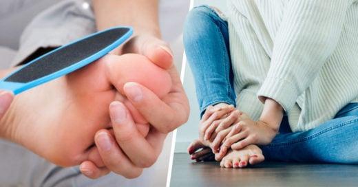 Callos en la planta del pie, protección de tu cuerpo para la piel