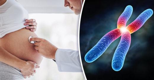 Encuentran gen que podría ayudar al tratamiento del síndrome de Down