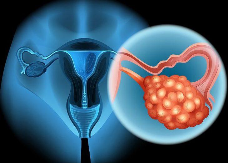 representación gráfica de un cáncer de ovario