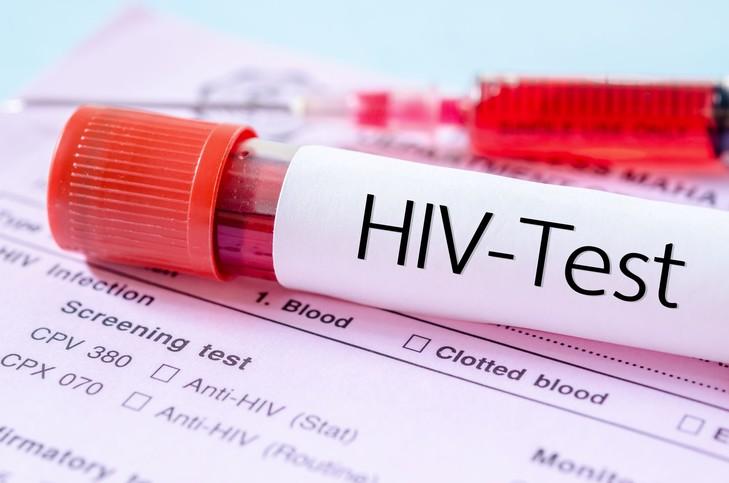 Prueba de sangre con VIH sobre unas hojas
