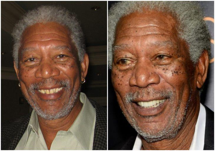 Morgan Freeman antes y después de arreglar su dentadura