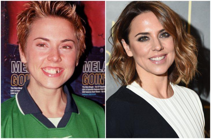 Melaine C antes y después de arreglar su dentadura