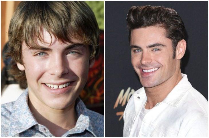 Zac Efron antes y después de arreglar su dentadura