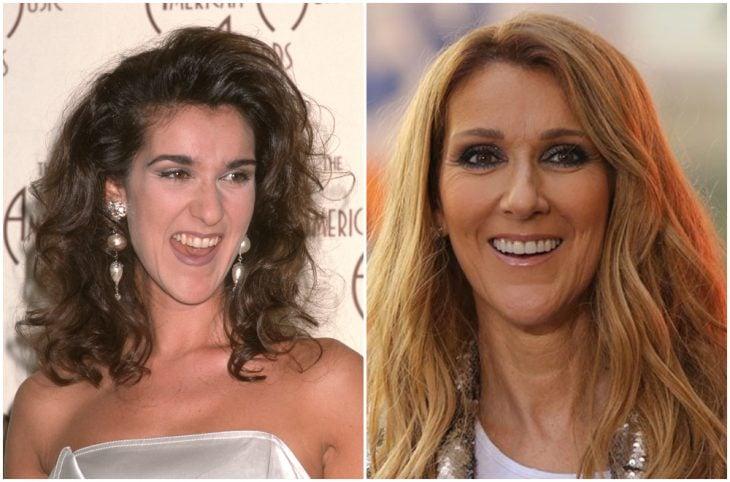 Celine Dion antes y después de arreglar su dentadura