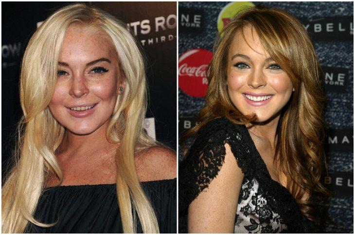 Lindsay Lohan antes y después de arreglar su dentadura