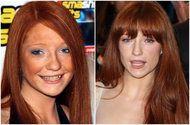 Nicola Roberts antes y después de arreglar su dentadura