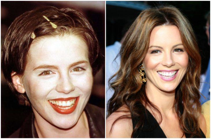 Kate Bickansale antes y después de arreglar su dentadura