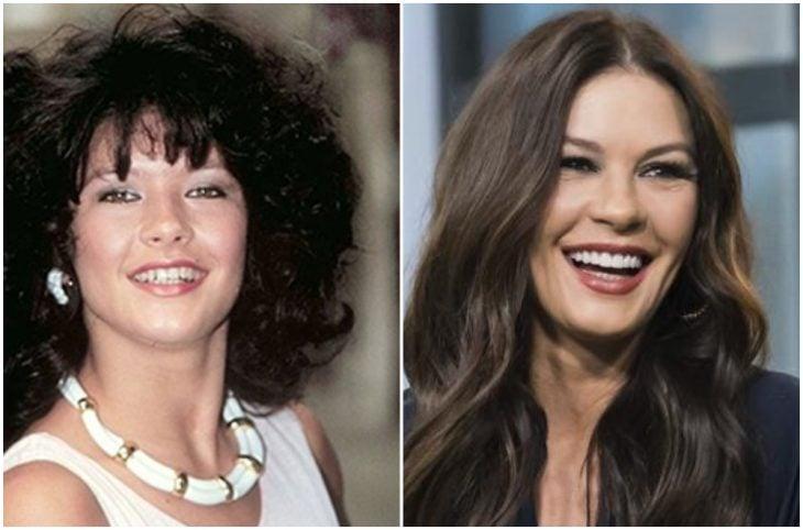 Catherine Zeta Jones antes y después de arreglar su dentadura