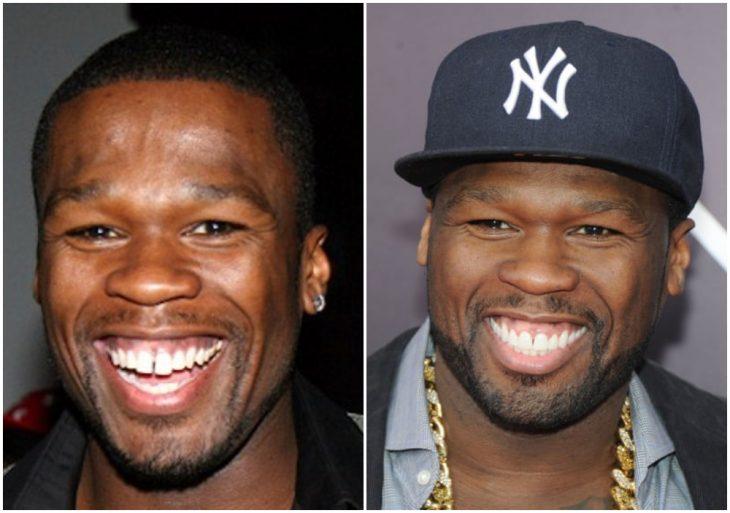 50 Cent antes y después de arreglar su dentadura