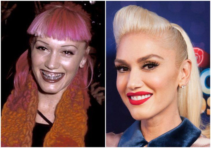 Gwen Stefani antes y después de arreglar su dentadura
