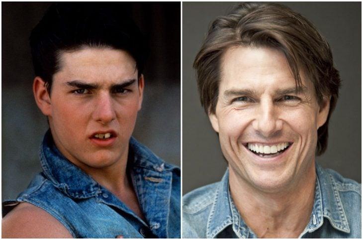 Tom Cruise antes y después de arreglar su dentadura