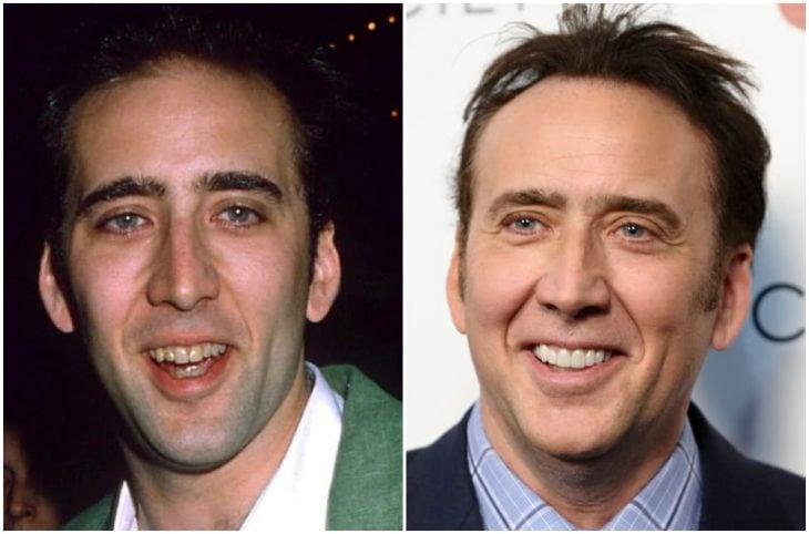Nicolas Cage antes y después de arreglar su dentadura
