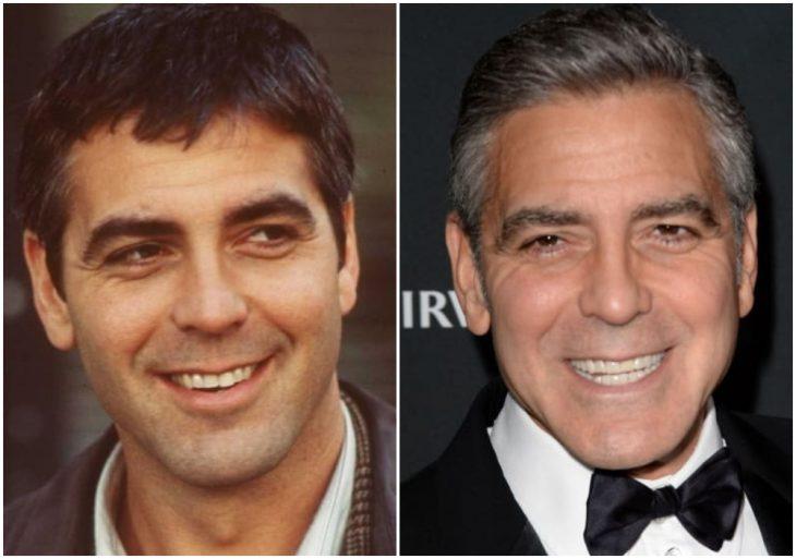 George Clooney antes y después de arreglar su dentadura