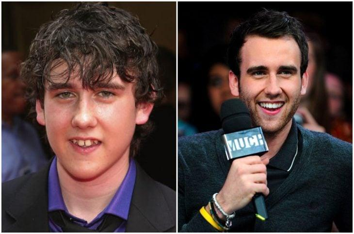 Matthew Lewsi antes y después de arreglar su dentadura