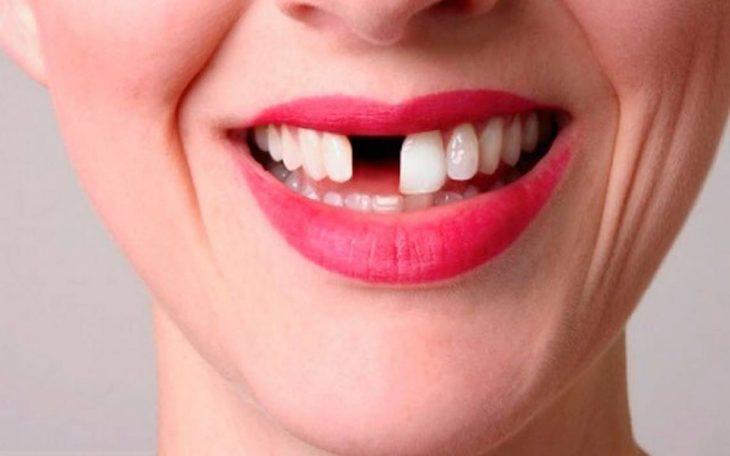 una sonrisa de una mujer con los labios pintados sin un diente frontal