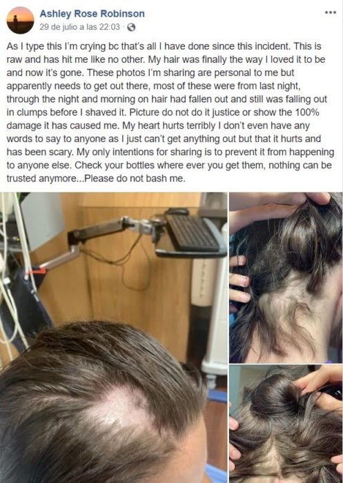 Publicación de Ashley Rose Robinson sobre su experiencia al perder el pelo por un acondicionador mezclado con crema depilatoria