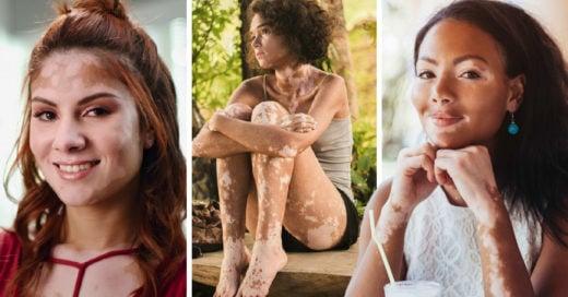Médicos cubanos desarrollan medicamento que quita el vitiligo en tres días