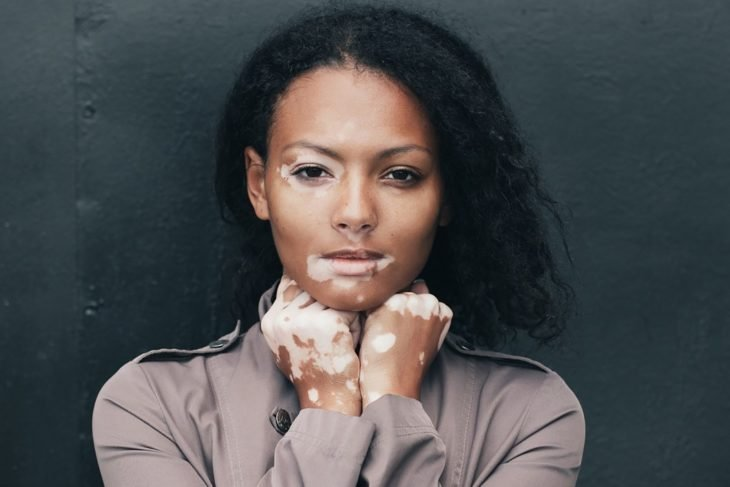 Mujer con vitiligo en la piel