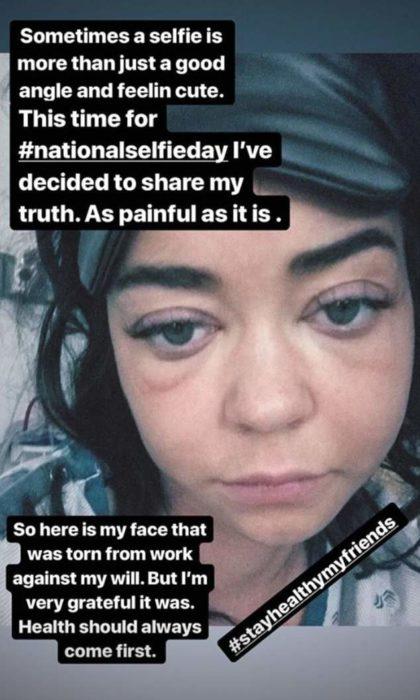 Publicación de Sarah Hayland con una cara inflamada y mensajes que dedicó a sus fans