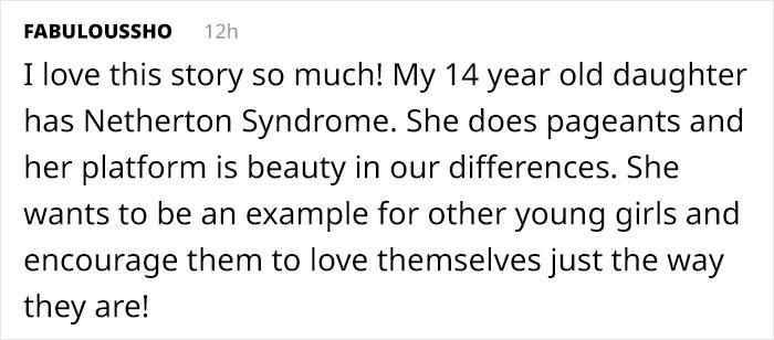 Comentarios en twitter sobre una modelo con una extraña condición en la piel