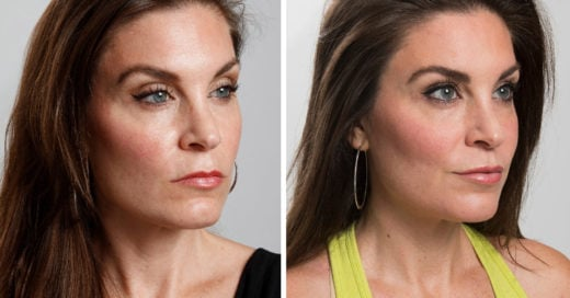 Mujeres se operan para cambiarse la resting bitch face