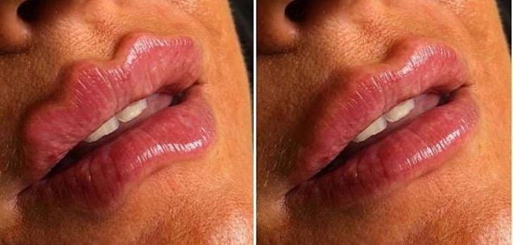 Chica mostrando el antes y después de sus labios endemoniados
