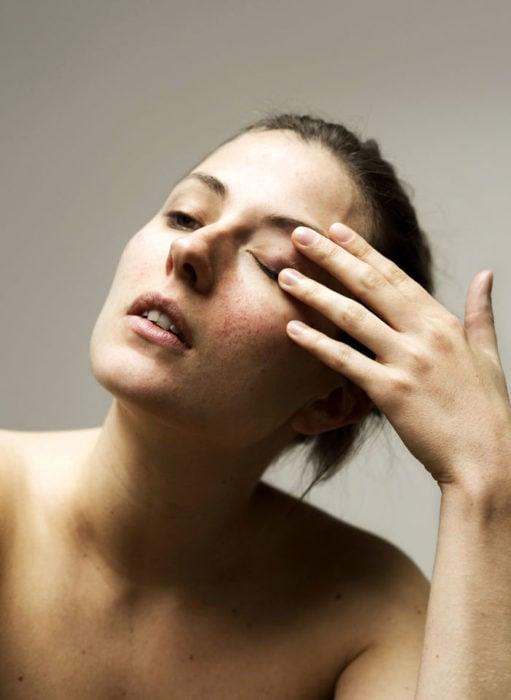Retrato de mujer con piel del rostro irritada