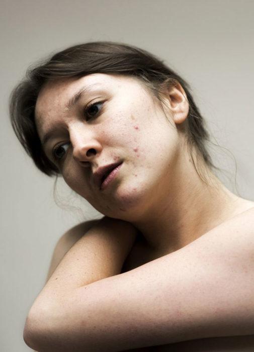 retrato de mujer con acné