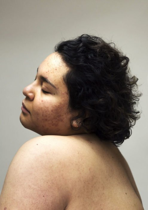 Retrato de mujer con cicatrices de acné