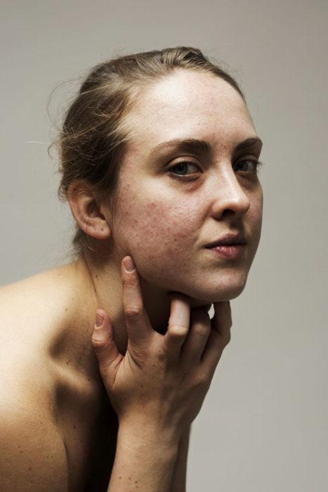 Retrato mujer con acné