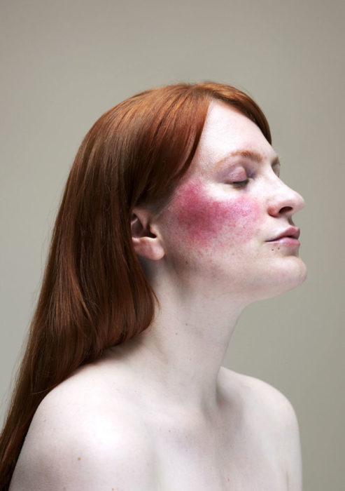 Retrato de mujer con rosácea