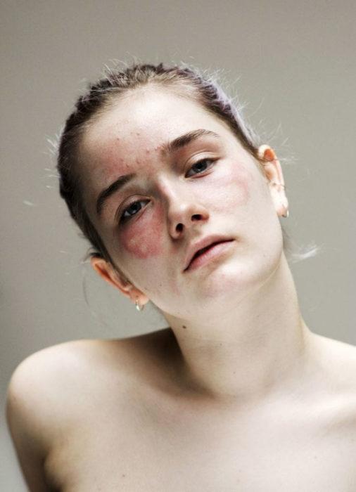 Retrato de mujer con eccema