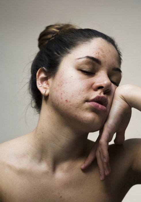 Retrato de mujer con piel irritada y granitos