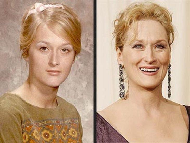 Meryl Streep antes y después