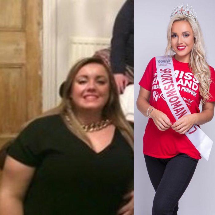 Fotos de Jen antes y después de haber bajado de peso
