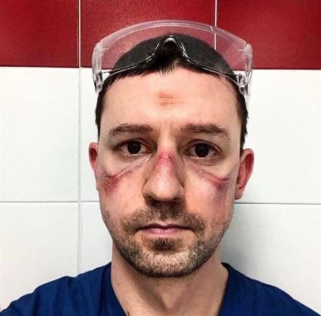 Médico con el rostro marcado por el uso de mascarillas especiales