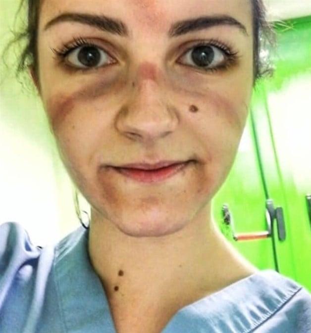 Mujer médico con el rostro marcado y amoratado por el uso de mascarillas especiales