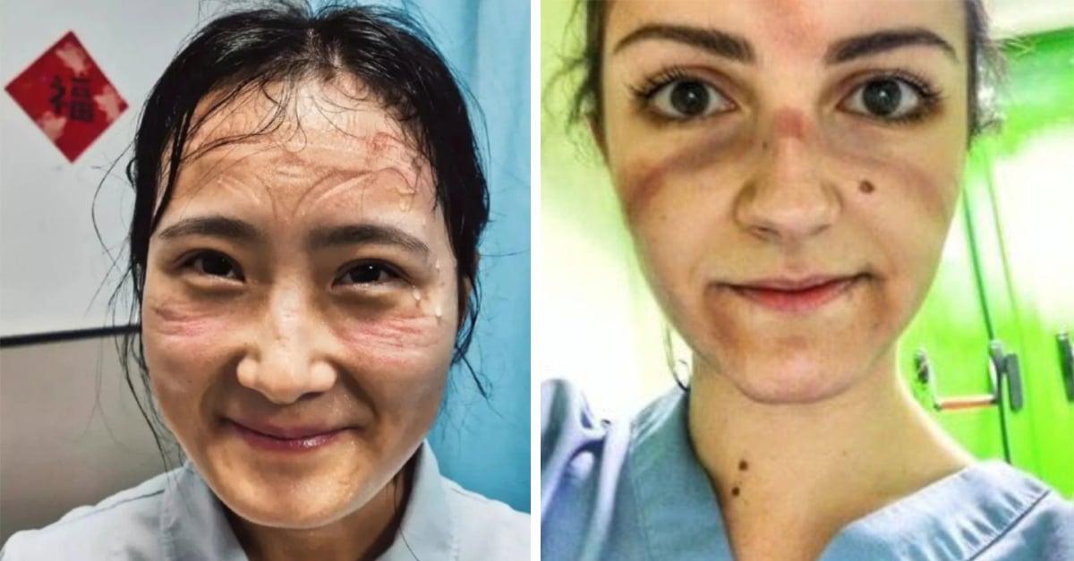 Así lucen los rostro de los doctores que luchan contra la pandemia
