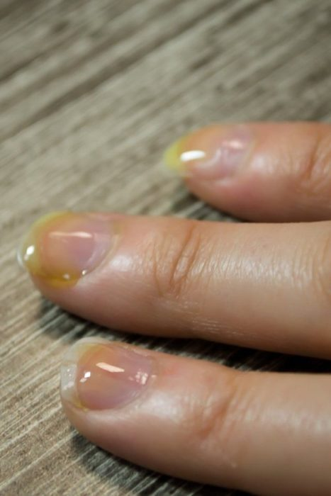 Nails with olive oil and tea tree oil