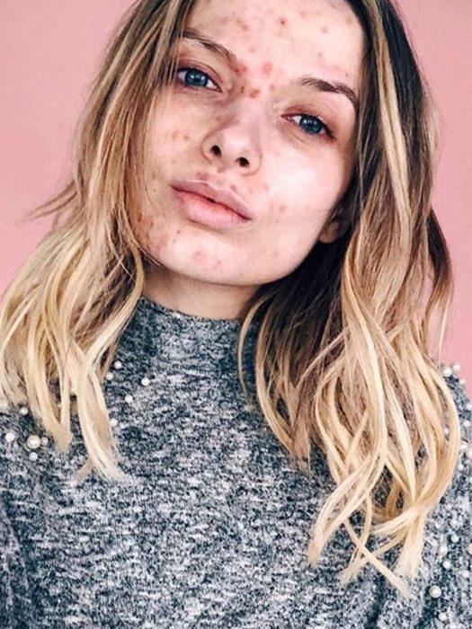Chica que padece acné