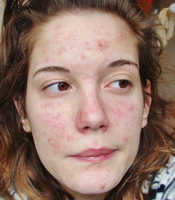 Chica que padece dermatitis