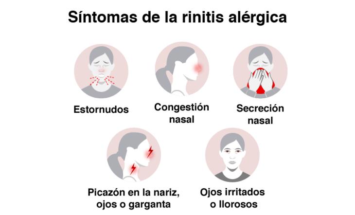 Infografía sobre los síntomas de la alergia